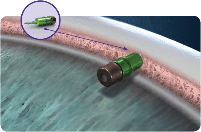 Glaucoma clinical trial device.